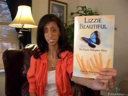 Lizzie Velasquez