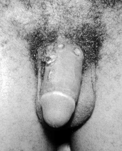 Penis_syphilis