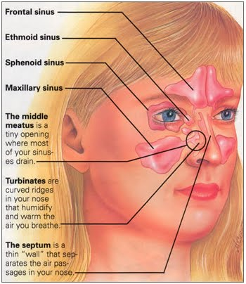 The paranasal sinuses (Source: carlygoogles.blogspot.in)