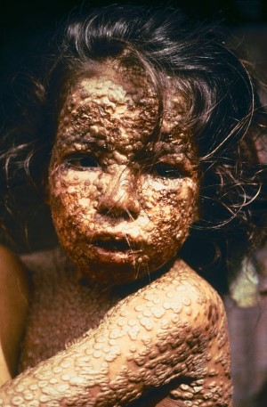 A young girl infected with smallpox (Source: CDC/James Hicks)